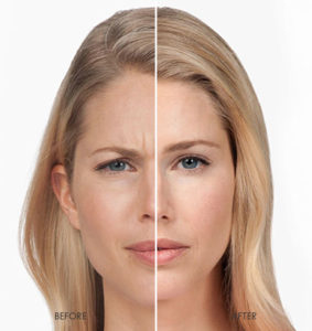 Botox before and After in Urbana Maryland